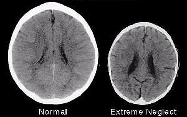 vpliv stresa na razvoj možgan otrok