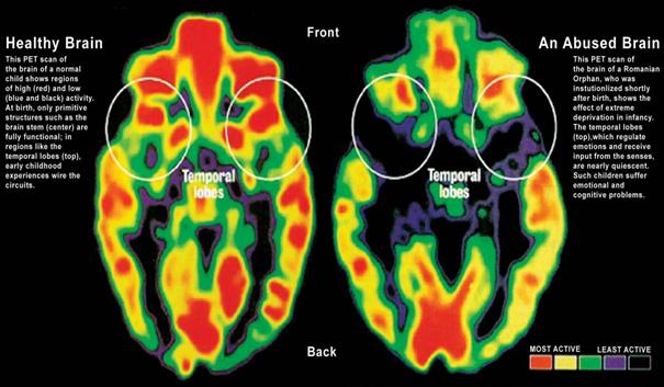 vpliv stresa na možgane otrok